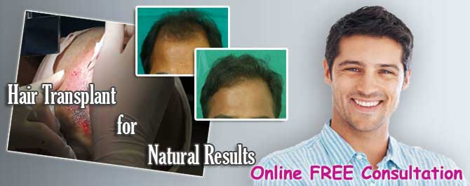 hair transplant Alwar